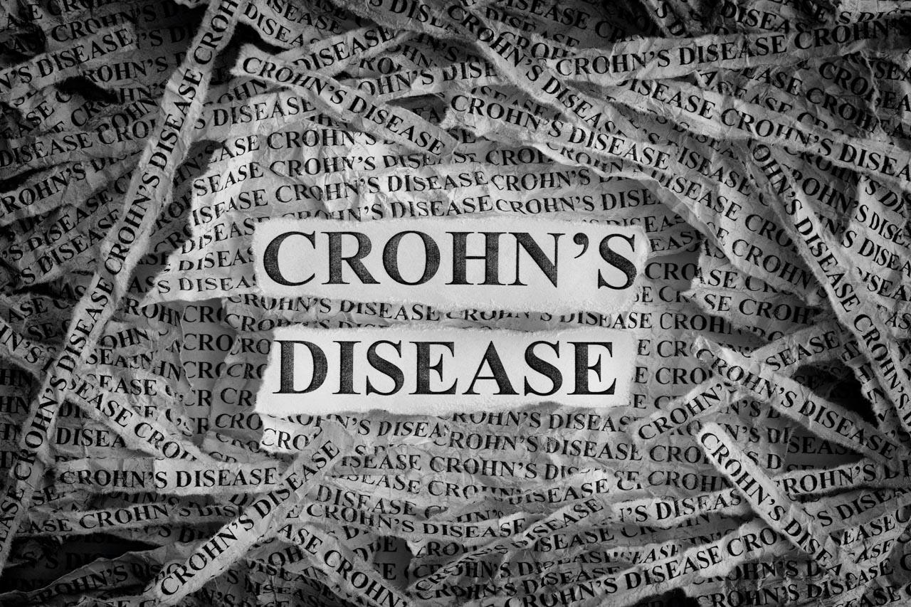 De behandeling van de ziekte van Crohn