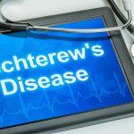 Wat is de ziekte van Bechterew?