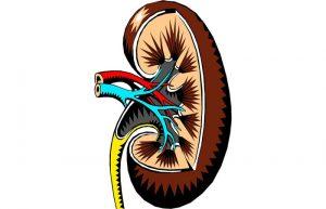 Nierbekkenontsteking met urosepsis