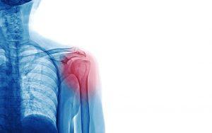 Slijmbeursontsteking in de schouder
