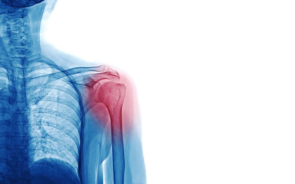 Lees meer over het artikel Slijmbeursontsteking in de schouder